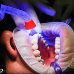 Zła dieta żywienia się to większe deficyty w zębach a także ich utratę